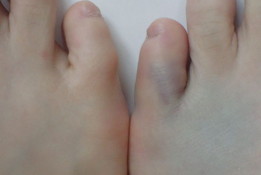 足の小指をタンスの角にぶつけて青いアザが浮かび上がってきた
