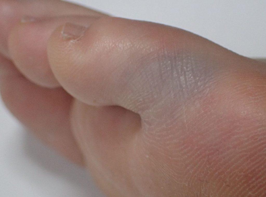 タンスの角にぶつけた小指の周囲が紫色に変色してきた