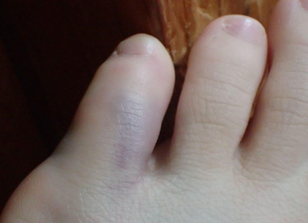 タンスの角に足の指がぶつかるシーンのイメージを再現