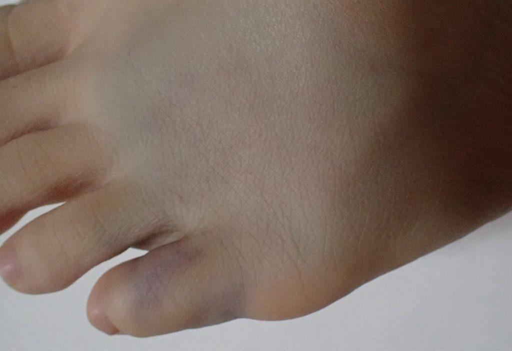 タンスの角にぶつけた足の指から甲にかけて青く変色している