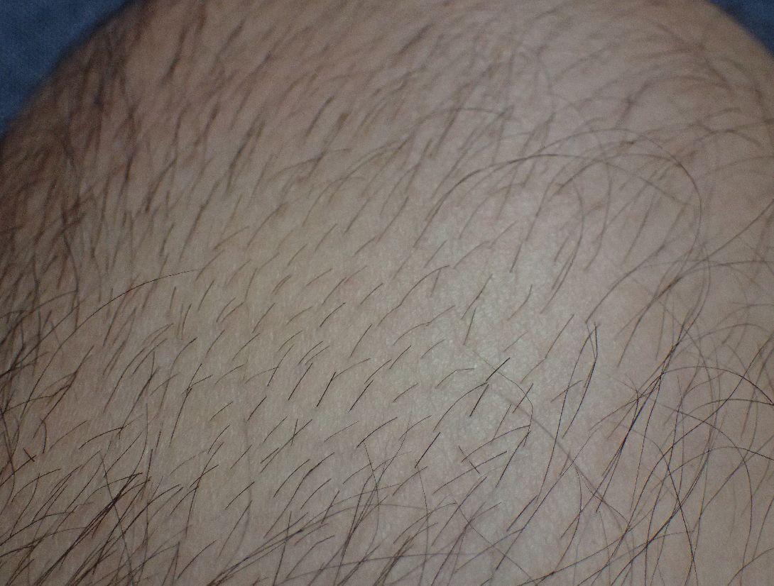 電動バリカンで足の毛をカットしてみる